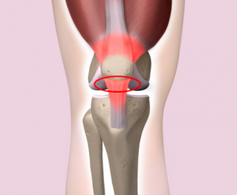 筋肉、腱、靭帯のそれぞれの役割